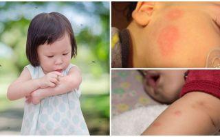 Mosquito muscat pe pielea unui adult sau copil