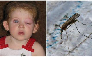 Ce trebuie să faceți dacă un copil are un ochi pufos după o mușcătură de țânțari