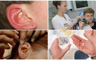 Citește în urechea unei persoane: simptome și tratament