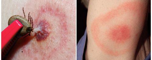 Ce este boala Lyme, simptomele, tratamentul și fotografia