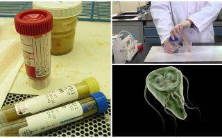 Cum să treci corect fecalele pe Giardia, metode de analiză