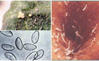 Ce arată ouă de pinworm?