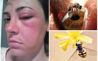 Ce se întâmplă dacă o albină în ochi și-a umflat