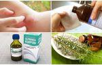 Ce să faceți dacă pieptești o muscatura de țânțar