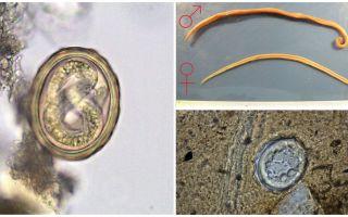 Schema ciclului de viață al dezvoltării viermilor umani