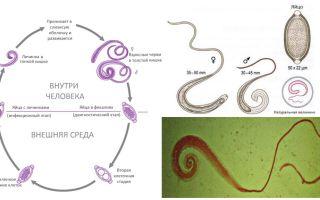 Simptomele și tratamentul ghearelor umane