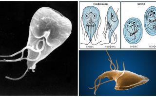 Boala gingiilor la adulți - simptome și tratament
