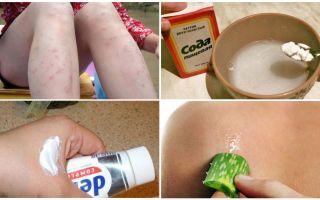 Cum să eliminați petele roșii de la mușcăturile de țânțari