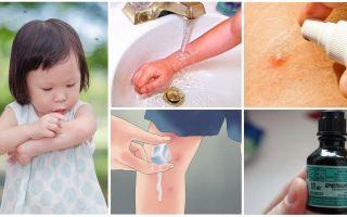 Cum și ce să tratăm mușcăturile de țânțari la un copil