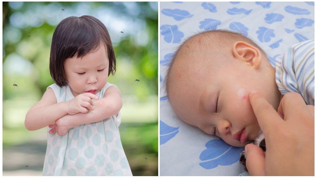 Mosquito mușcături la copii