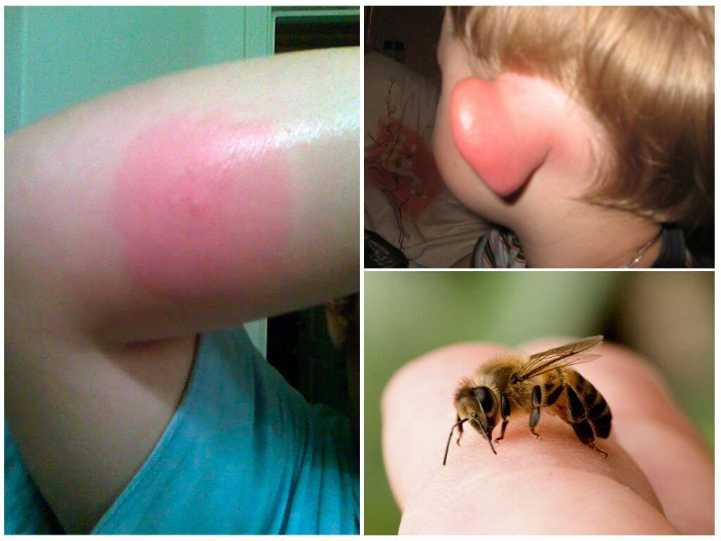 Bumblebee muscatura