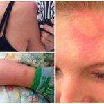 Reacție alergică la mușcăturile de țânțari