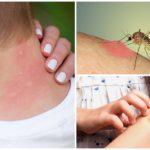 Mosquito mușcături