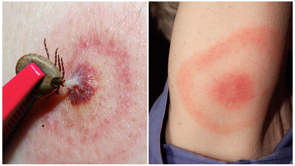 Boala Lyme sau boala Borreliosis