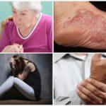 Simptomele stadiului cronologic de borrelioză